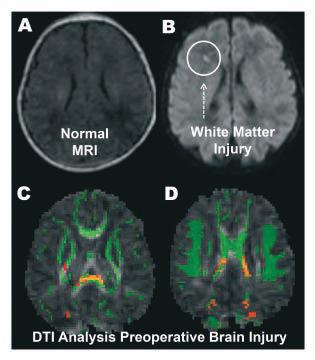 Preoperative Brain Injury in Newborns with Congenital Heart Disease.