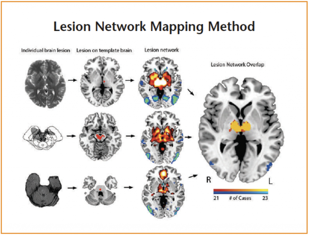 Lesion network mapping involves two steps. First, a brain lesion from a clinical scan is mapped onto a reference brain (columns 1 & 2).